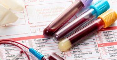 Низкий уровень лейкоцитов в крови у женщин, причины