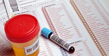 Наличие сгустков или следов крови в моче: что делать, почему возникают