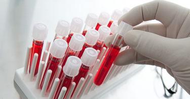 Общий (Клинический) анализ крови: расшифровка результатов и норма в таблице