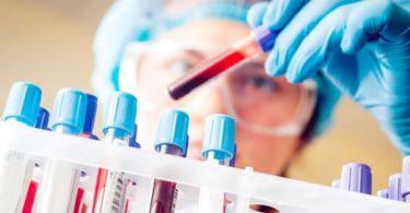 Клинический анализ крови: натощак или нет