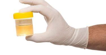 Причины обнаружения белка в моче после родов, что делать