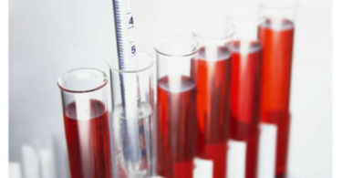 Как правильно сдать кровь на гемоглобин, натощак или нет