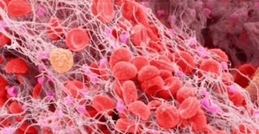 Повышенный фибриноген при беременности: нормы для 1, 2, 3 триместра, как понизить