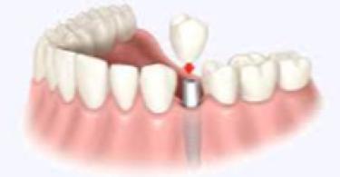 Основные этапы, преимущества и особенности имплантации