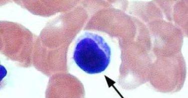 Повышены лейкоциты в мазке при беременности: причины, норма