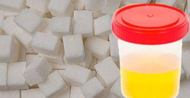 Анализ мочи на глюкозу: сбор, норма у взрослых, почему повышена