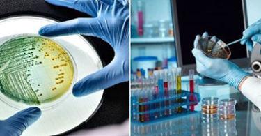 Анализ кала на дисбактериоз –  правила сбора, хранения, результаты