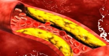 Холестерин: что нужно о нем знать?