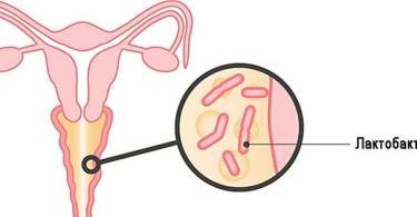 Мазок на флору во время беременности: норма, отклонения