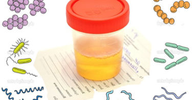 Бактериурия в анализе мочи: причины, лечение, норма, расшифровка