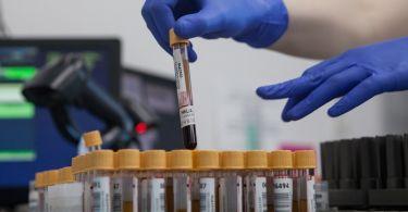 Показатель ГГТ в биохимическом анализе крови: повышен, понижен, норма