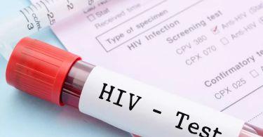 Может ли показать общий анализ крови ВИЧ: какие показатели указывают на вирус