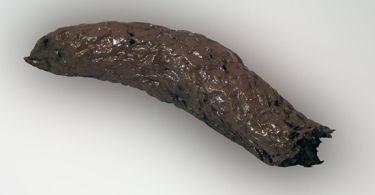 Черный кал – причины, симптомы, лечение