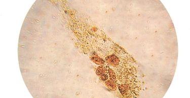Клетки плоского (переходного) эпителия в анализе мочи повышены