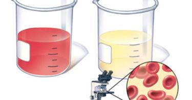 Лейкоциты и эритроциты в моче повышены при беременности