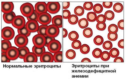 Эритроциты при анемии