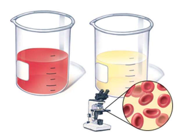 Эритроциты в моче под микроскопом