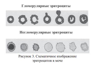 Схематичное изображение эритроцитов в моче