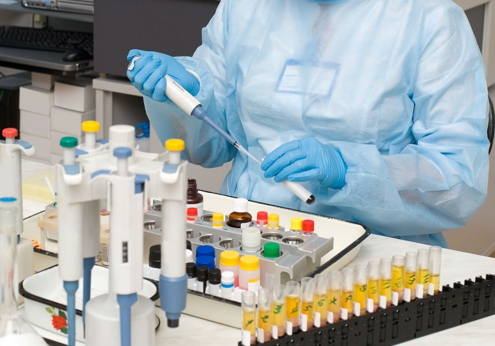 Исследование анализов мочи в лаборатории