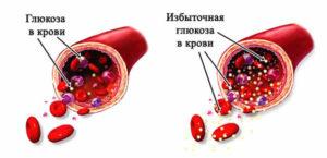 Избыточная глюкоза в крови