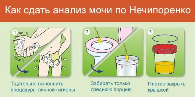 Инструкция по сдаче анализа мочи по Нечипоренко