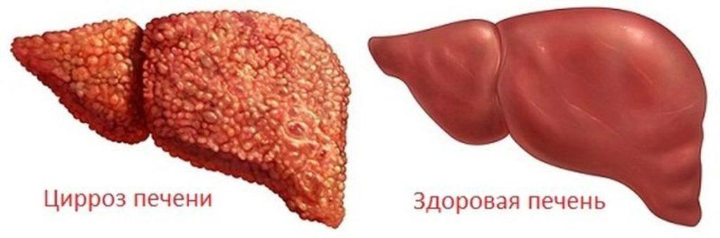 Здоровая и больная циррозом печень