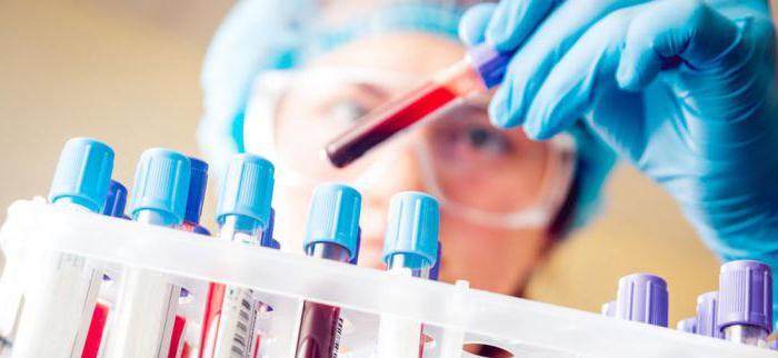Врач изучает анализ крови