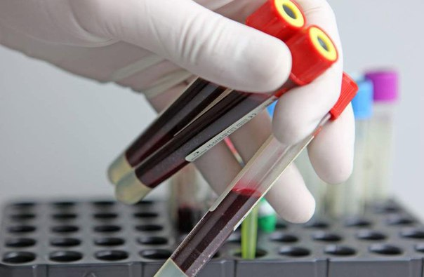 Пробирка с общим анализом крови