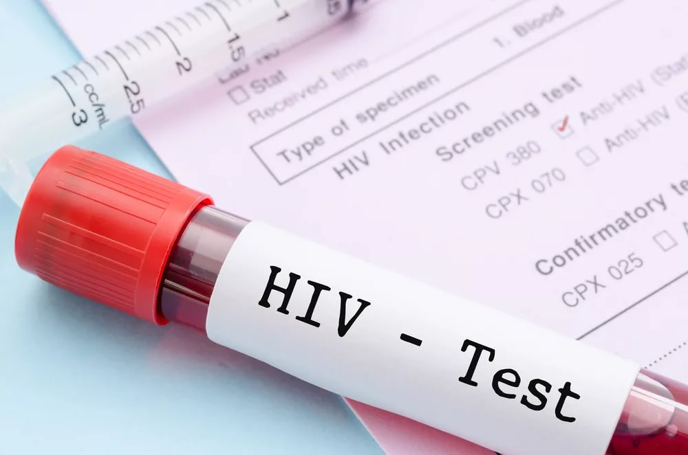 Пробирка с кровью ВИЧ