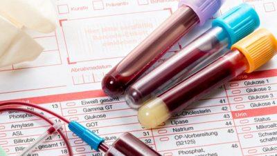 Анализы крови у женщин