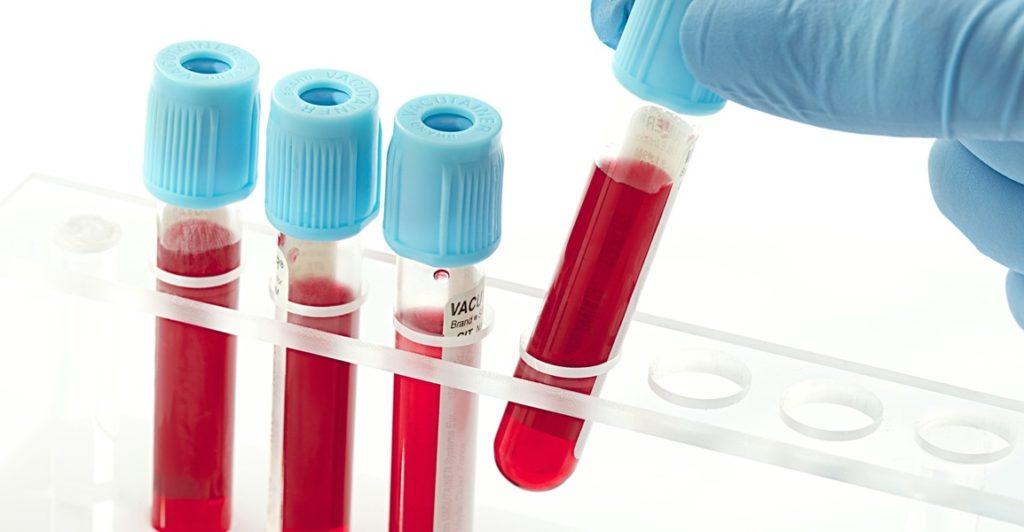 Диагностика крови