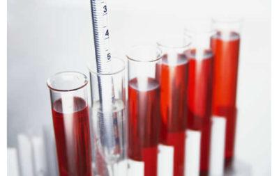 Кровь на гемоглобин сдавать натощак