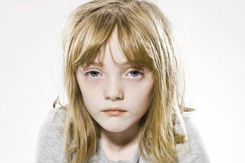 Ребенок с низким гемоглобином