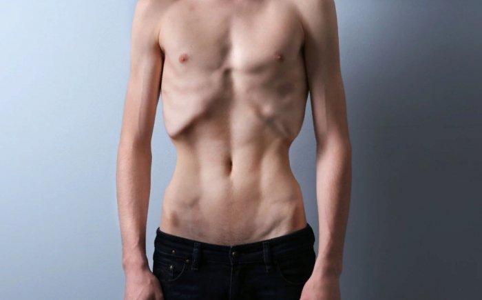 Снижение массы мышц пациента
