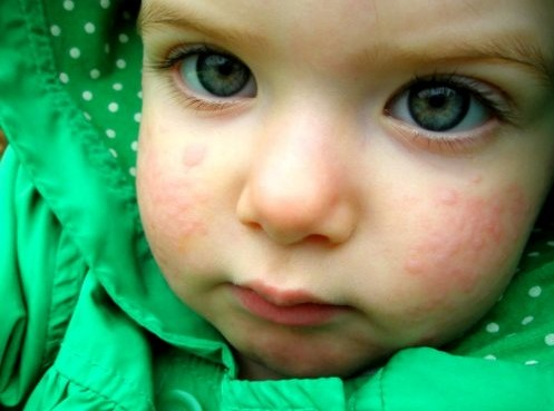 Аллергия у маленького ребенка