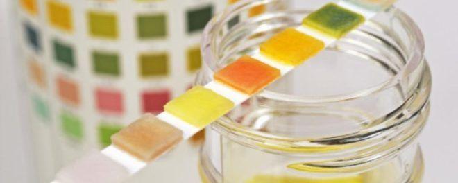 Цветовая палитра для анализа мочи