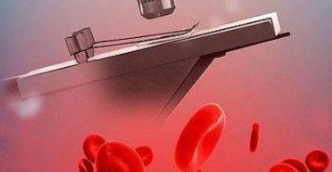 Лейкоциты в крови у новорожденного