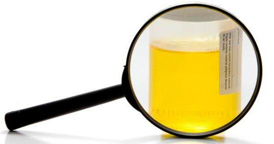 Диагностика содержания эпителия в моче