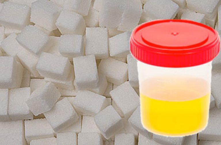 Сахар в моче