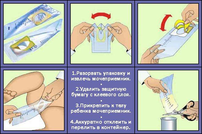 Мочеприемник для грудных детей